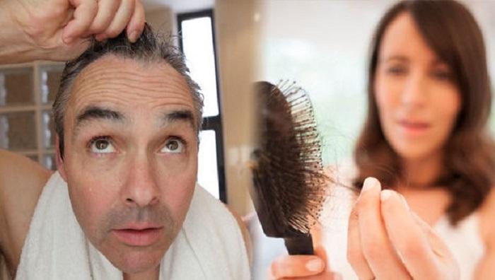 Alopecia, un padecimiento que preocupa a los hombres