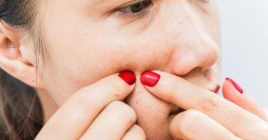 Sebiaclear Serum para tratar el acné en edad adulta
